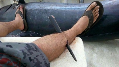 Video and Story Behind Viral Leg Impaled by Marlin