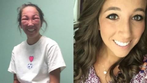 Woman's Eyes Swell Shut After Poison Ivy Encounter and the Results Go Viral Thanks to Her Sister