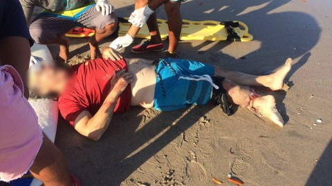 American Surfer Attacked by Crocodile in Costa Rica : Very Graphic