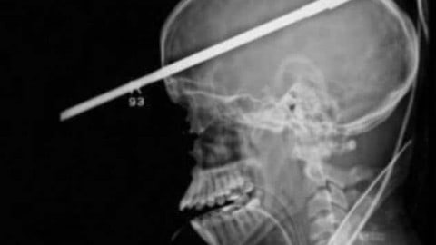 16-Year-Old Miraculously Survives Fishing Accident After a Spear Goes Through His Brain