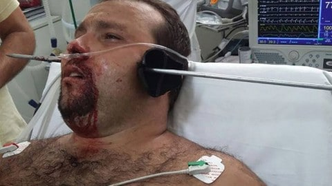 Man Gets Harpooned Through His Jaw on Fishing Trip