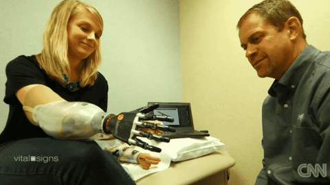 A Bionic Arm Is Helping This Mother Take Back Control After Shark Attack Injury
