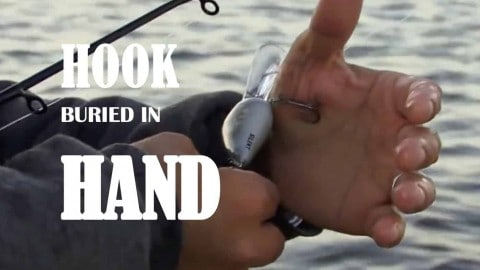 VIDEO: Reliable Fish Hook Removal